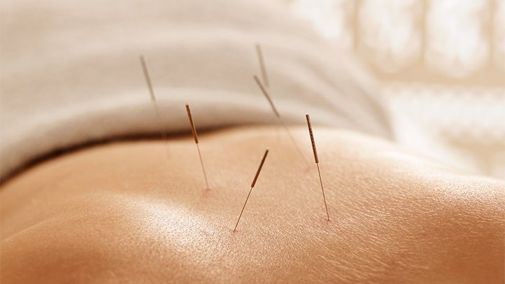 Acupuncture may help unleash your sexual energy.